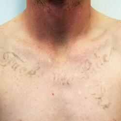 10. Dec 2018 Post 7 txt - Black Ink - Type II - Upper chest