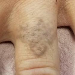 6. Nov 2017 Post 6 txt -Black Ink - Type III - Ring Finger