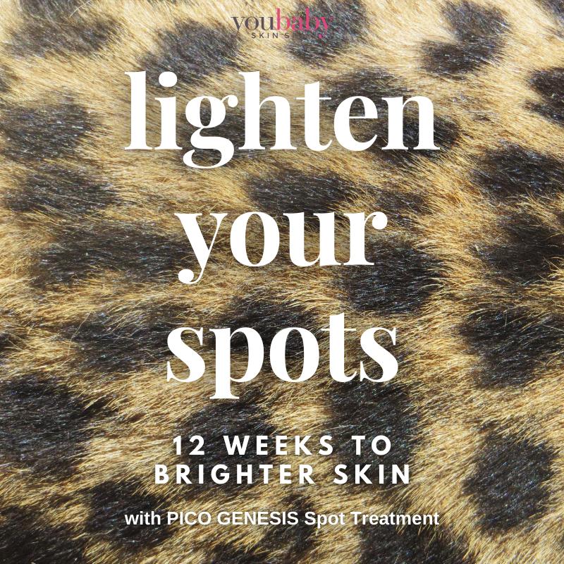 Lighten your spots