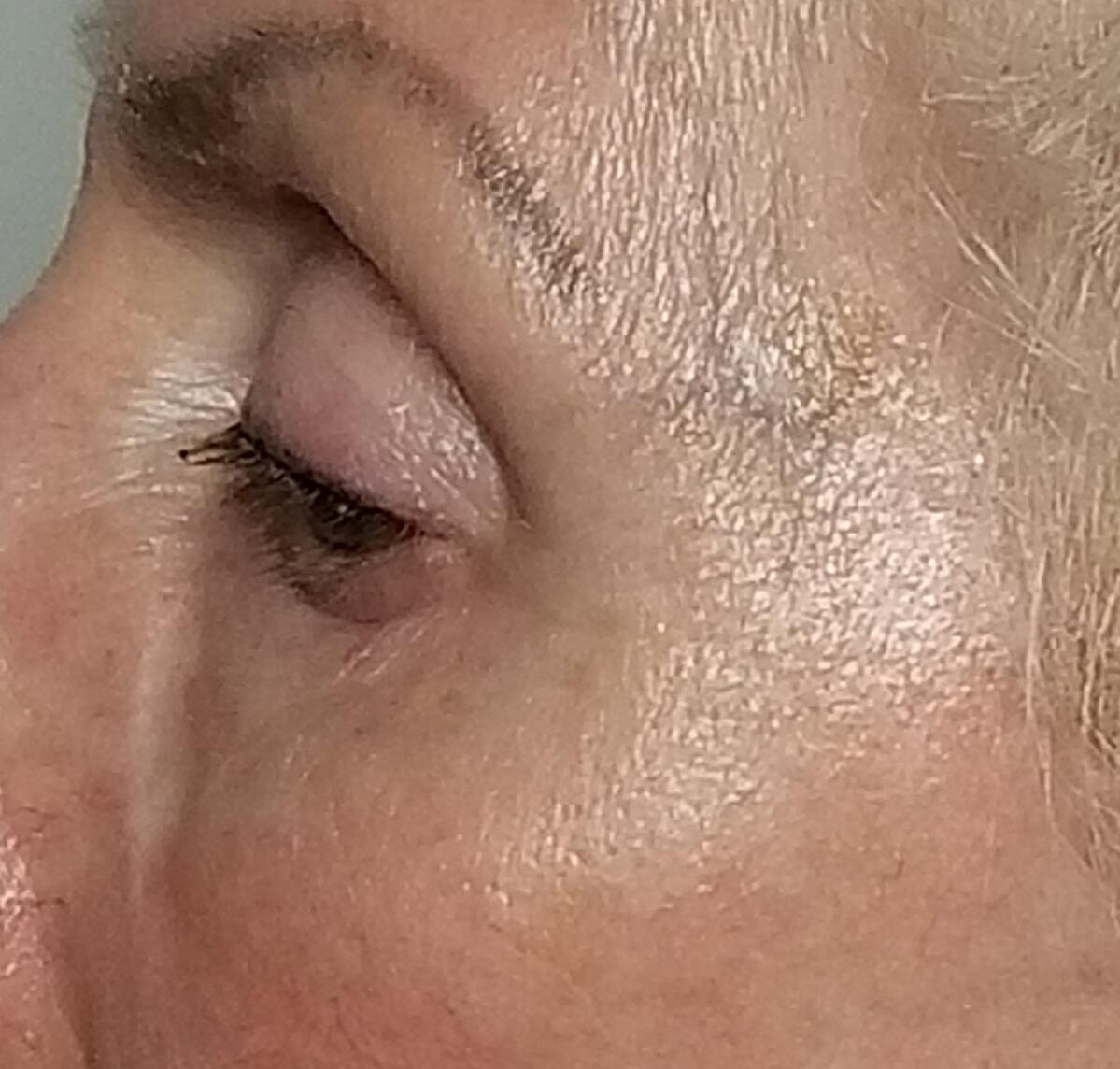 SB firming after crows feet