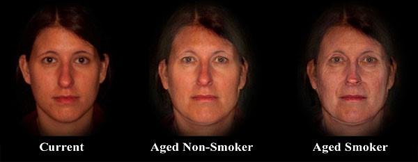 Smoker aging