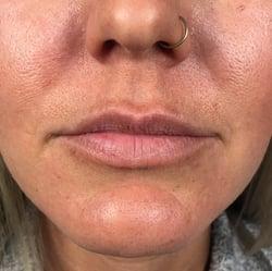 lips5b