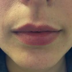 lips6b