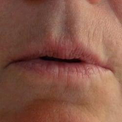 lips7b