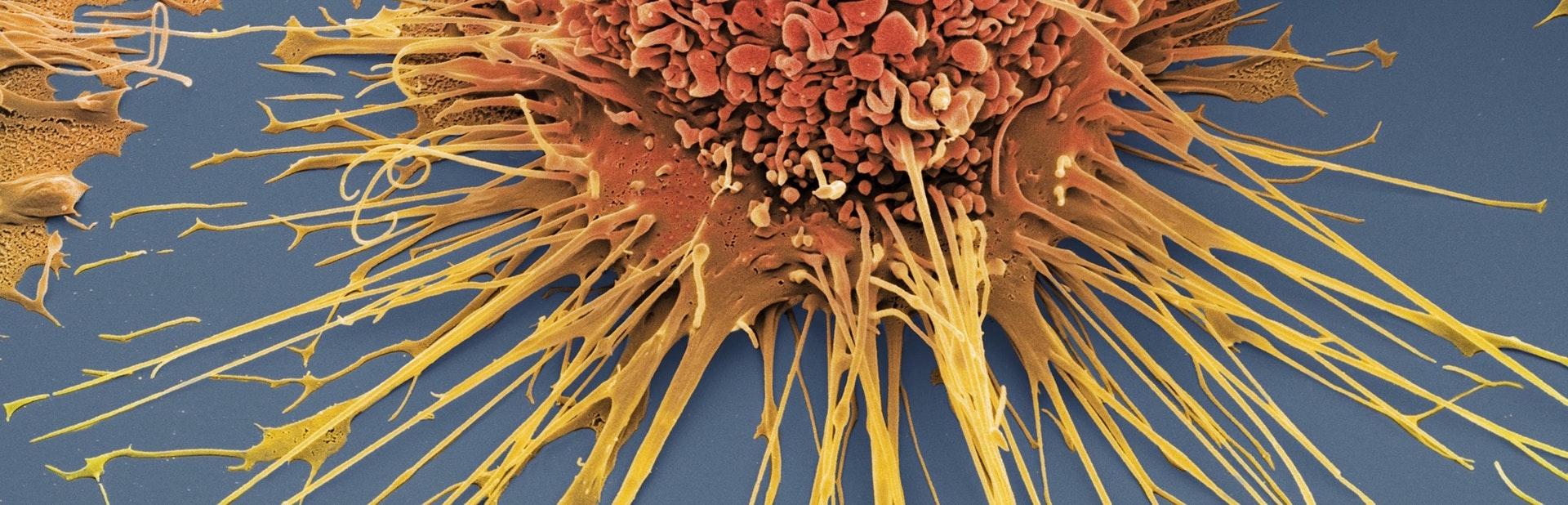 060516_macrophage_1
