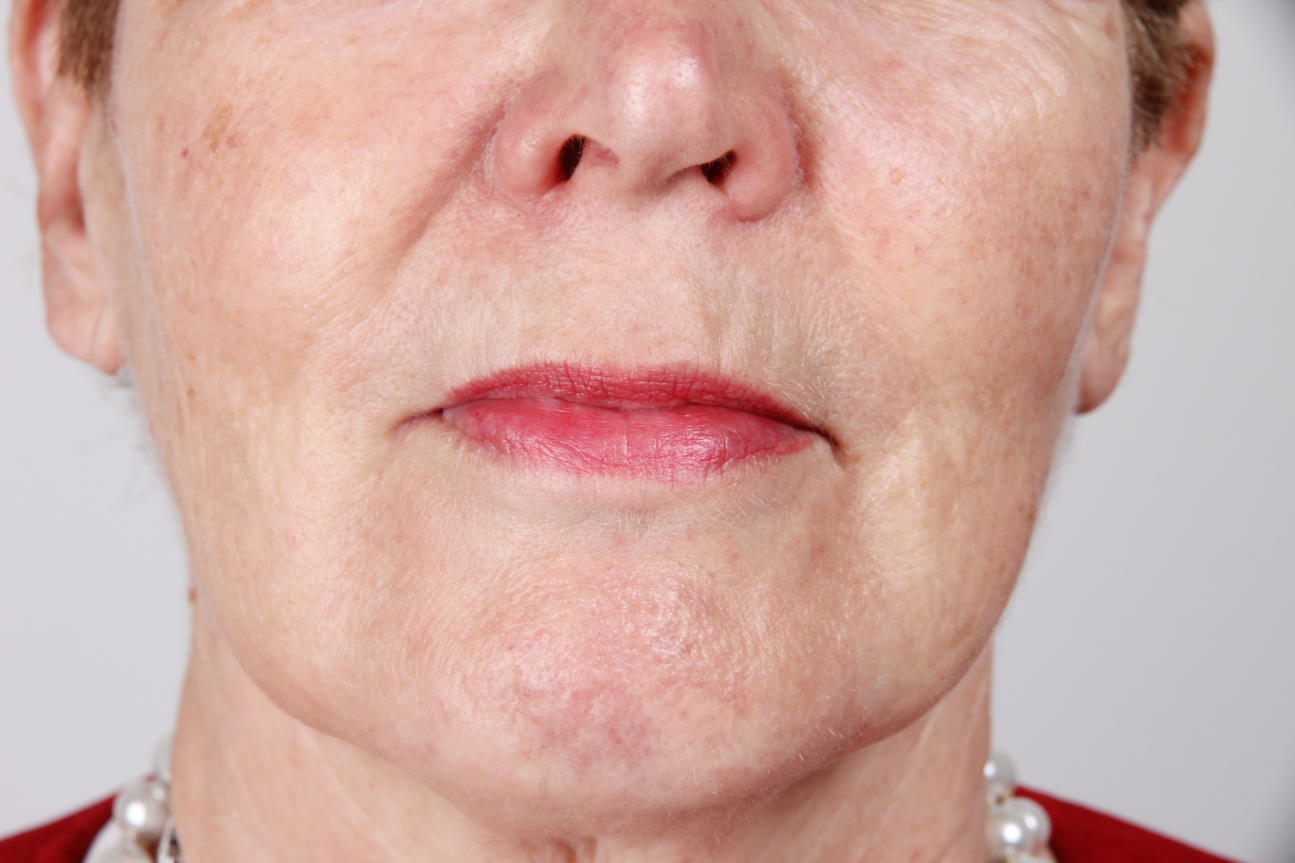 Dermatude Meta Therapy E2 mouth after