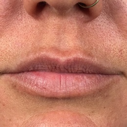 Lips - Before