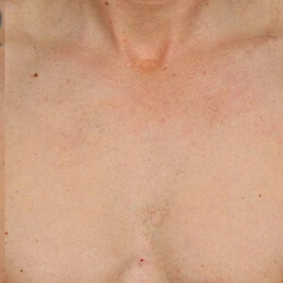 TATTOO REMOVAL - AFTER