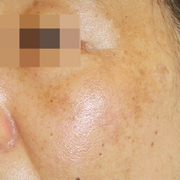 SUN DAMAGE & PIGMENTATION - AFTER
