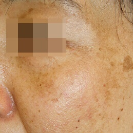 SUN DAMAGE & PIGMENTATION - BEFORE