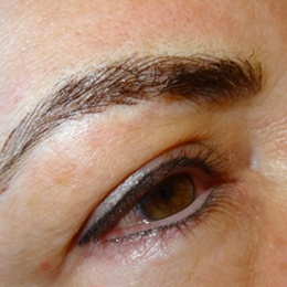 BROWS - AFTER